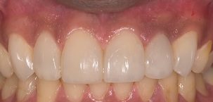 After Resin Reconstruction
