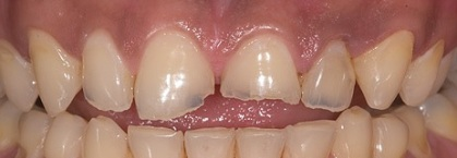 Before Resin Reconstruction