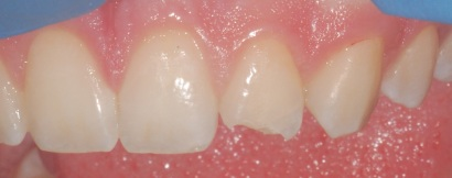 Fractured tooth before