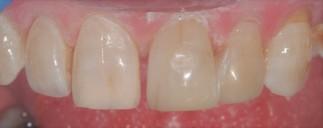 Natural Resin fillings