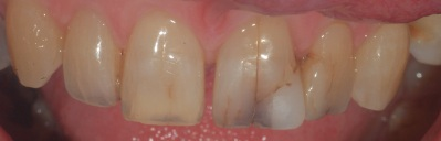 Stained cracked teeth and fillings